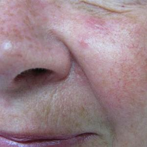 laser mole removal on face
